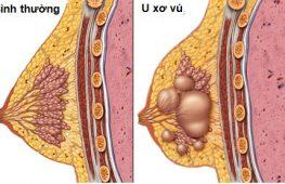 U xơ tuyến vú có nên phẫu thuật?